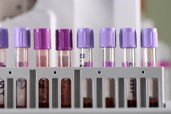Blood Analysis Machine